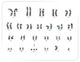 Chromosomeloss Loss